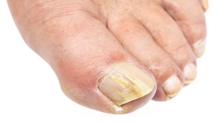 How to Get Rid of Toenail Fungus: The Essential Guide - OptingHealth